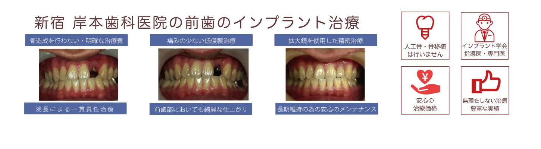 症例2-2上顎前歯部の骨造成無しでのインプラント治療